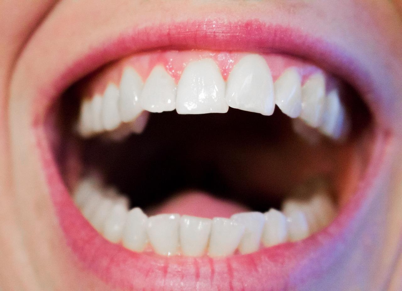 teeth-1652937_1280