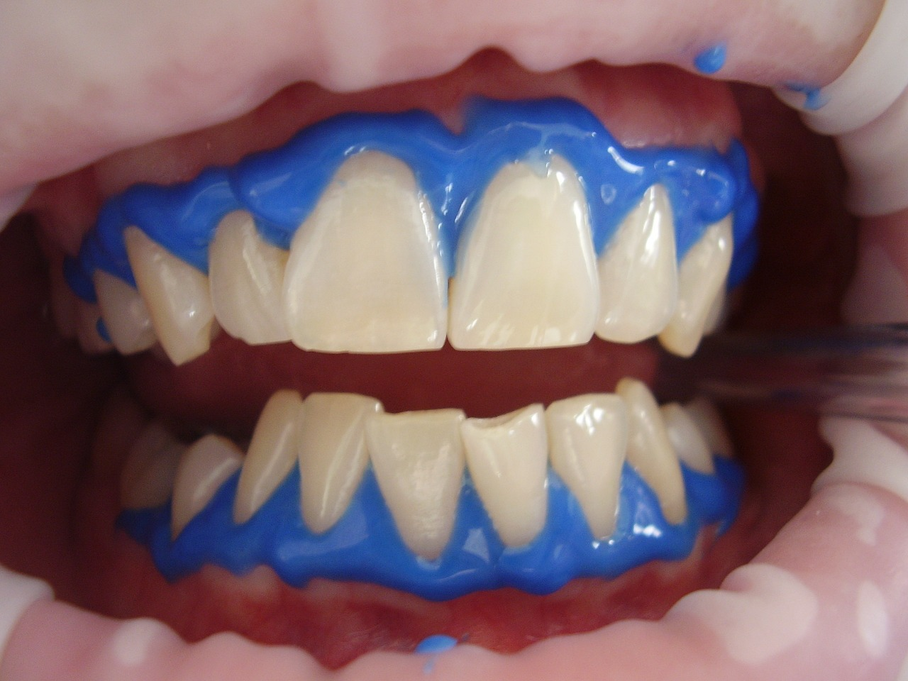laser-teeth-whitening-716468_1280