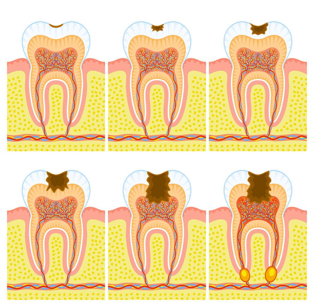 13078989 - internal structure of tooth: decay and caries