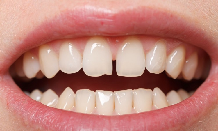 18575097 - diastema between the upper incisors is a normal feature
