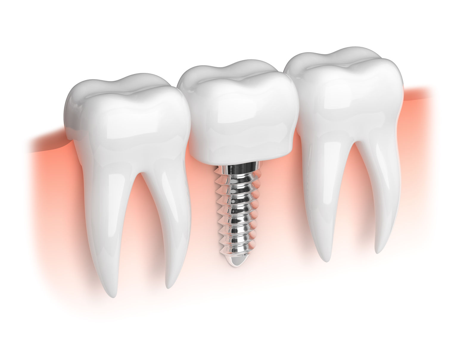 34380457 - model of white teeth and dental implant