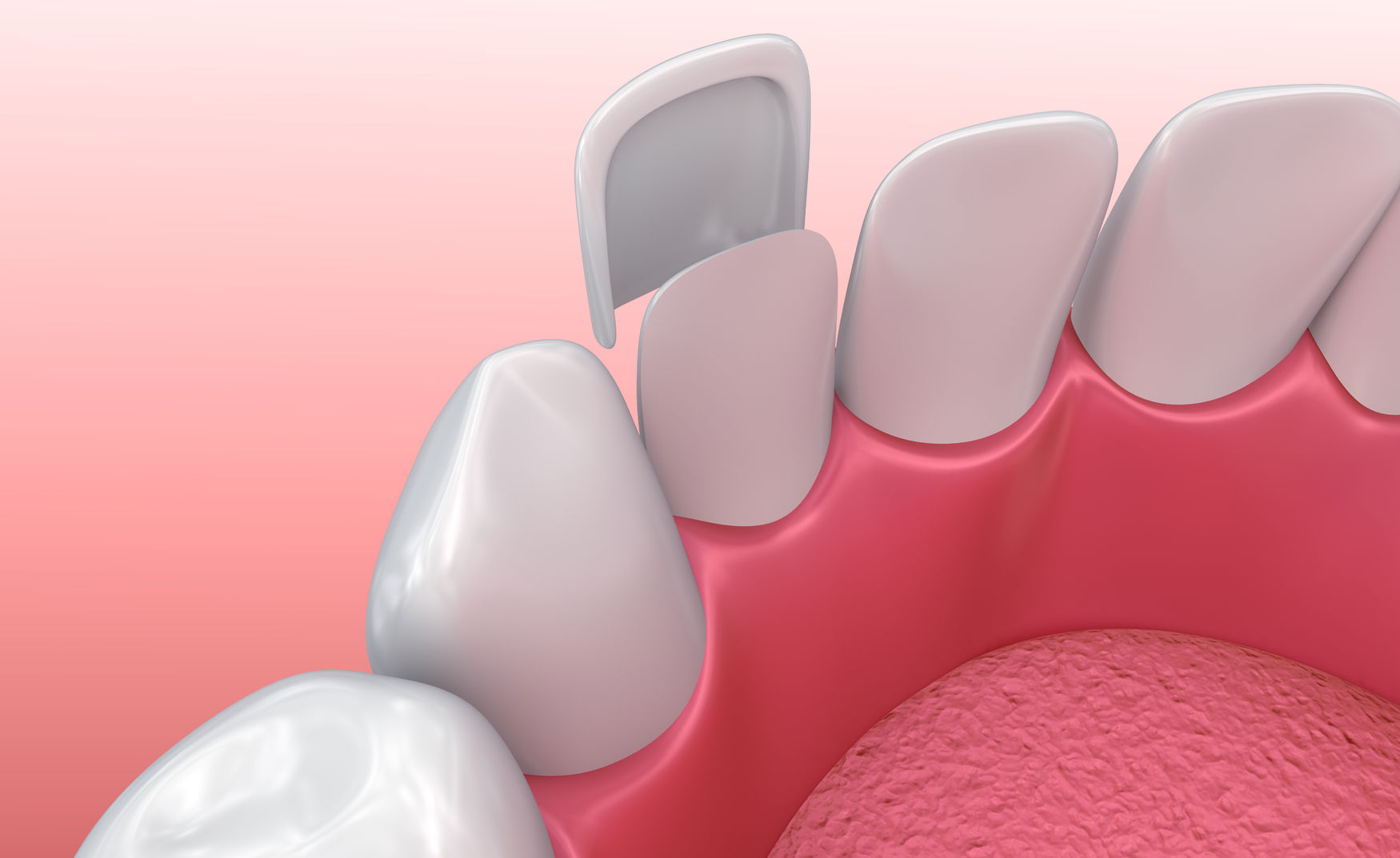 66754859 - dental veneers: porcelain veneer installation procedure. 3d illustration
